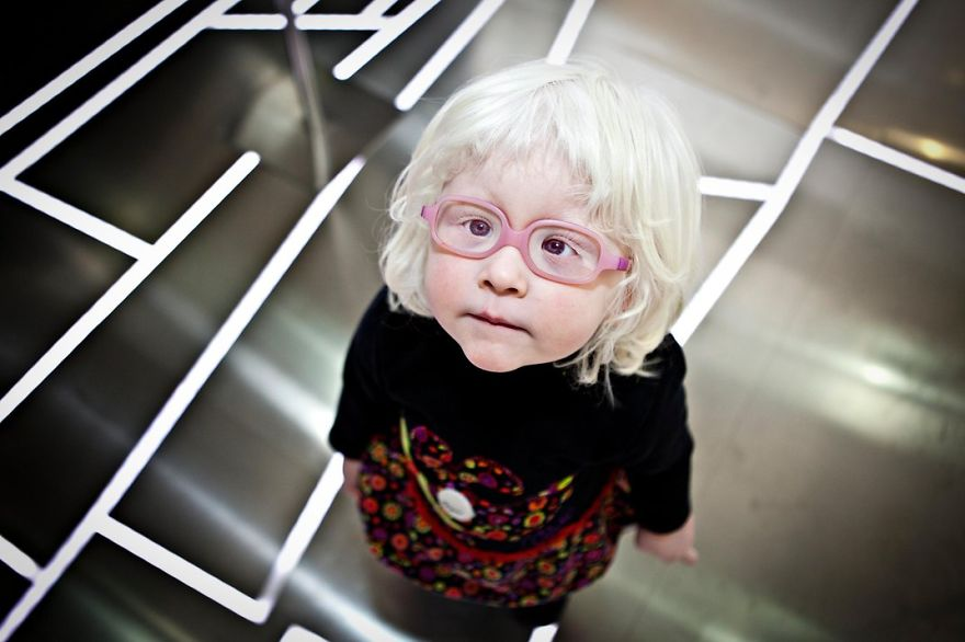A Girl With Albinism, Valencia, Spain Photo Contest