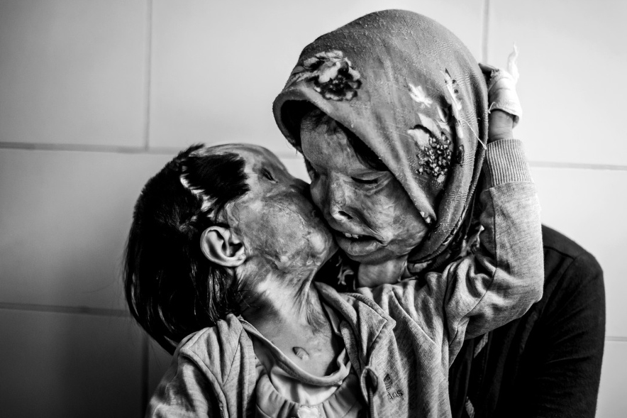A mother and her 3 year-old daughter, who were attacked with acid by their husband-father Human Diversity